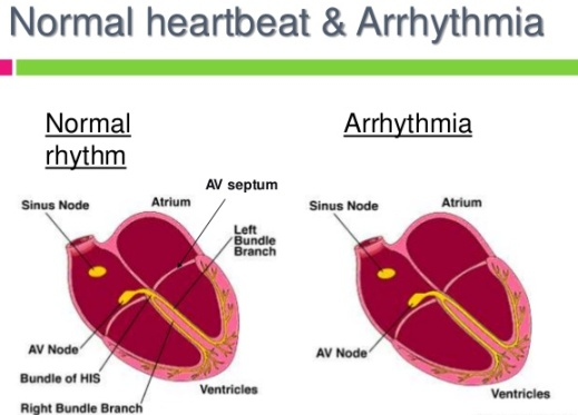 anti-arrhythmic-drug-thereapy-12-638